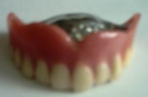 金属床入れ歯正面