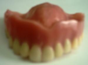 レジン床義歯正面